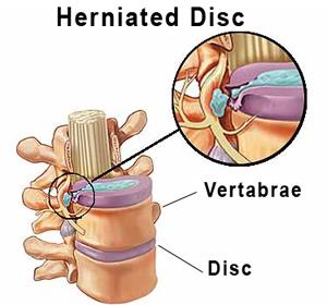 herniated disc treatment boca raton | boca health care center, Human Body